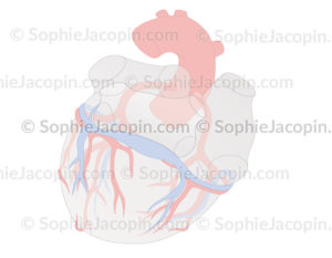 Sinus-coronaire-5660