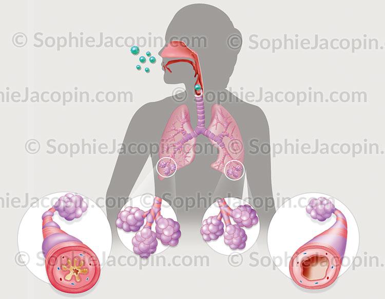 Illustration medicale_Asthme