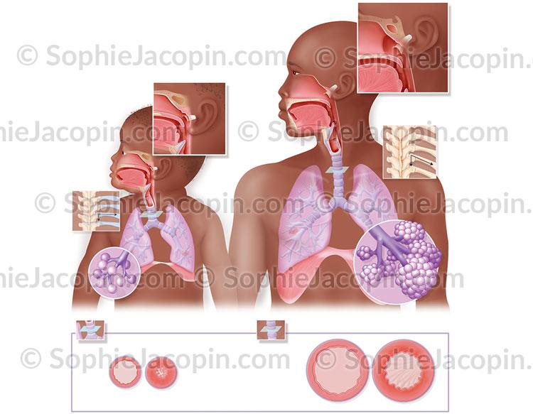 Système respiratoire enfant-adulte