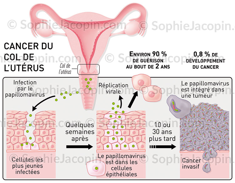Illustration medicale_Infection par le papillomavirus