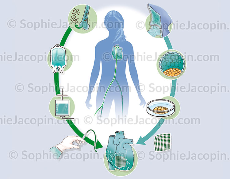 Illustration medicale_Traitement cœur