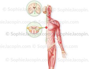 sclérose latérale amyotrophique - © sophie jacopin