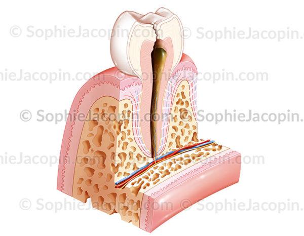 carie dent pulpopathie - © sophie jacopin
