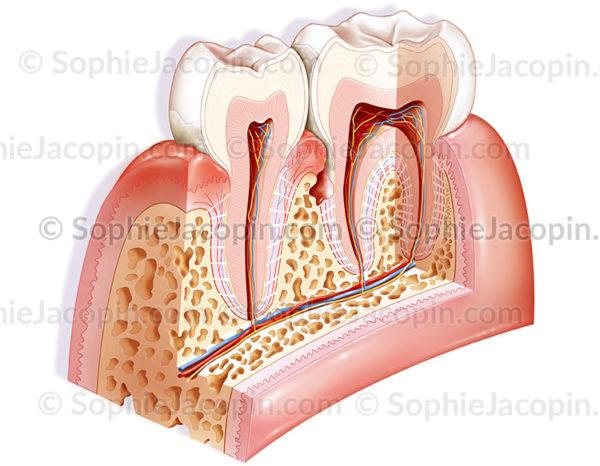 parodontite - © sophie jacopin