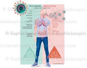 COVID-19, les symptômes provoqués par le coronavirus, SARS-COV-2 (Version anglaise) - © sophie jacopin