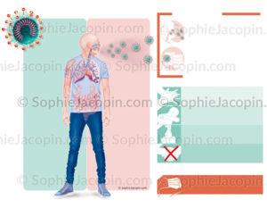 Coronavirus, symptômes et complications, modes de contamination, gestes de prévention - © sophie jacopin