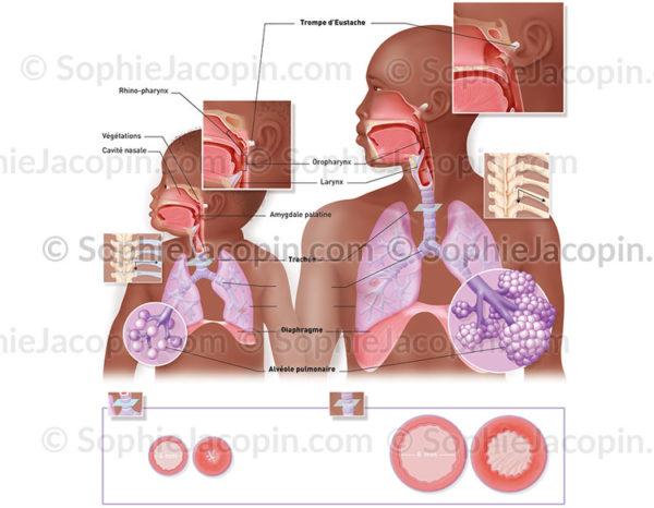 Comparaison entre le système respiratoire chez l'enfant en bas âge et l'adulte - © sophie jacpoin