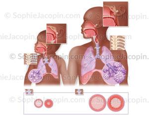 Comparaison entre les voies respiratoires chez l'enfant en bas âge et l'adulte - © sophie jacpoin