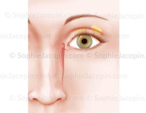 Appareil lacrymal, canal et glande lacrymale, glande de Meibomius - © sophie jacopin