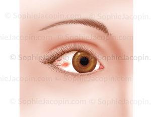 Episclerite, pathologie de l'œil, infection, agression oculaire - © sophie jacopin