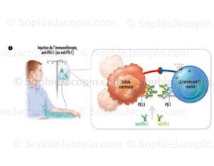 Immunothérapie par perfusion, injection d'immunomodulateur dans le traitement contre le cancer, immunothérapie - © sophie jacopin