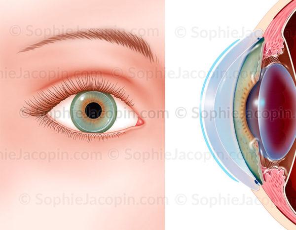 Lentille souple, correction visuelle, œil - © sophie jacopin
