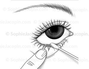Prélèvement des sécrétions lacrymales, examen par écouvillon - © sophie ajcopin