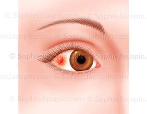 Sclérite, pathologie de l'œil, infection, agression oculaire - © sophie jacopin