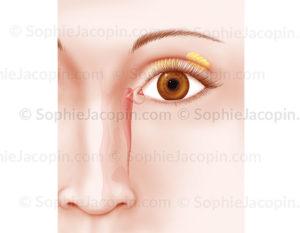 Système lacrymal, canal et glande lacrymale, glande de Meibomius - © sophie jacopin