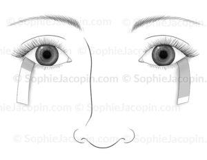 Test de Schirmer, examen ophtalmologique de mesure de quantité de larmes - © sophie jacopin