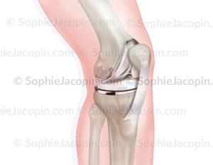 Prothèse du genou , pathologie de l'articulation avec atteinte osseuse et cartilagineuse - © sophie jacopin