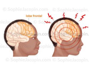 Surcharge mentale, comparaison entre à droite un cerveau avec une activité cérébrale normale et à gauche l'illustration d'une surcharge mentale - © sophie jacopin